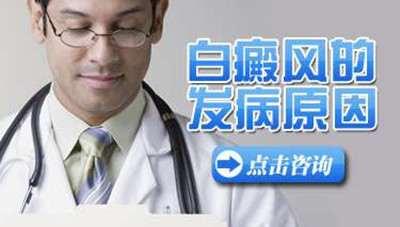 白癜风常见的病因都有哪些