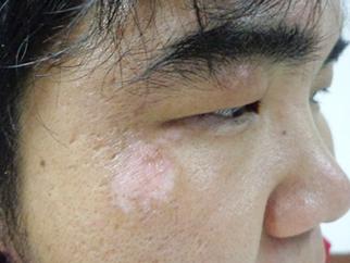 右脸颊白斑2年