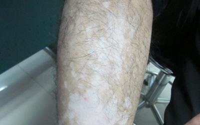 腿部大面积多年白癜风照家用uvb管用吗