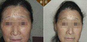 秦皇岛治疗白癜风多少钱