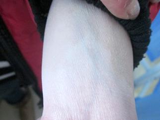 女性手臂白癜风案例