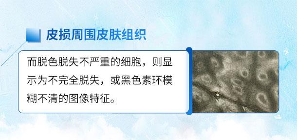 北京医师来啦!!特邀北京白癜风医师——苏有明教授将于4月5日来院会诊
