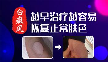 皮肤ct能检查出白斑是什么病吗
