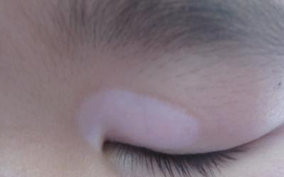 上眼皮有好几个小白点