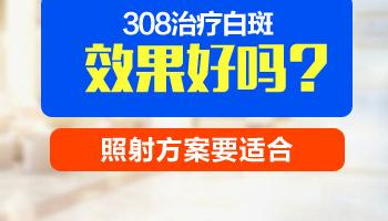 308准分子激光治疗白癜风有效果吗
