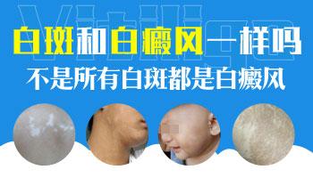 7个月孩子耳朵发现白斑怎么诊断是不是白癜风