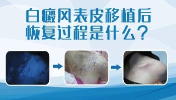 8个月孩子脚上有白点能用黑色素移植手术治疗吗