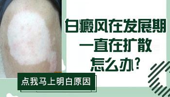 7个月孩子脖子有白斑抹补骨脂能治好吗,几个疗程